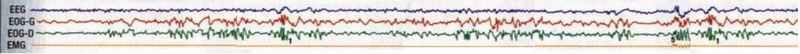 Paralysie et hallucinations du sommeil selon la médecine générale ReveE